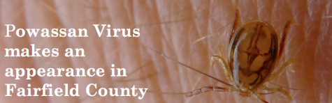 Powassan Virus makes an appearance in Fairfield County