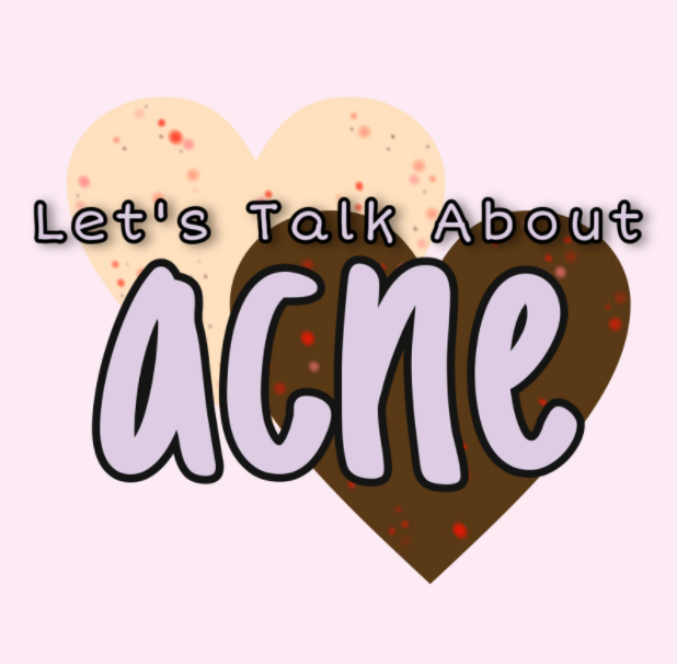 Acne, although common, is not talked about often enough and the struggles that having acne can cause need to be further understood.